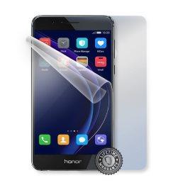 Fólia ScreenShield na celé telo pre Huawei Honor 8 - Doživotná záruka